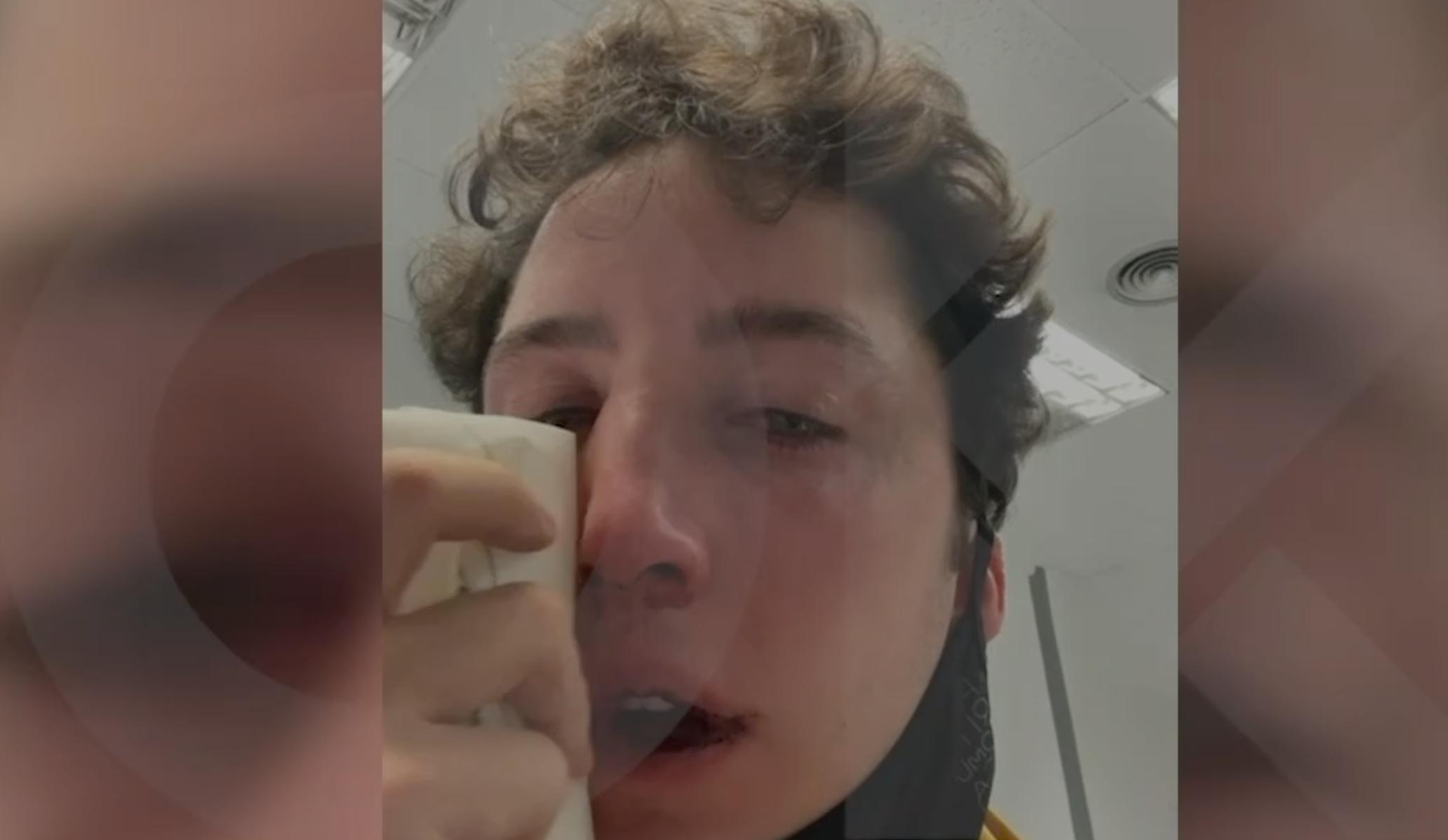 El 'Pequeño Nicolás' amb el nas trencat | OK Diario