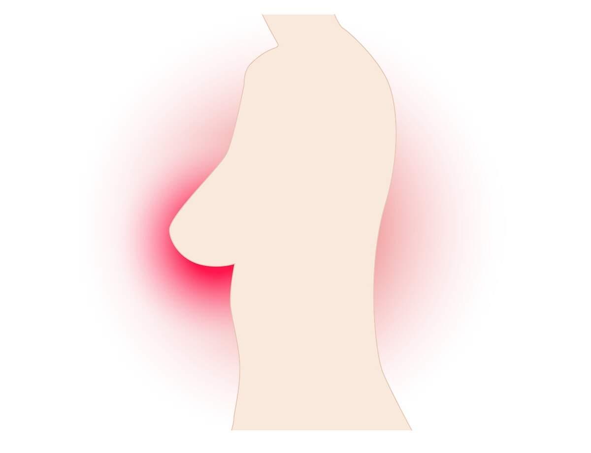 Càncer de mama  | Pixabay