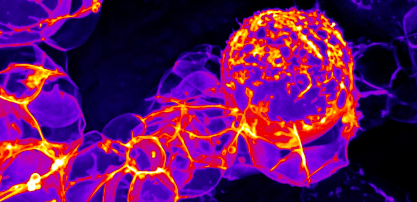 Una cèl·lula mare del cervell d'una mosca | Universitat d'Oregon