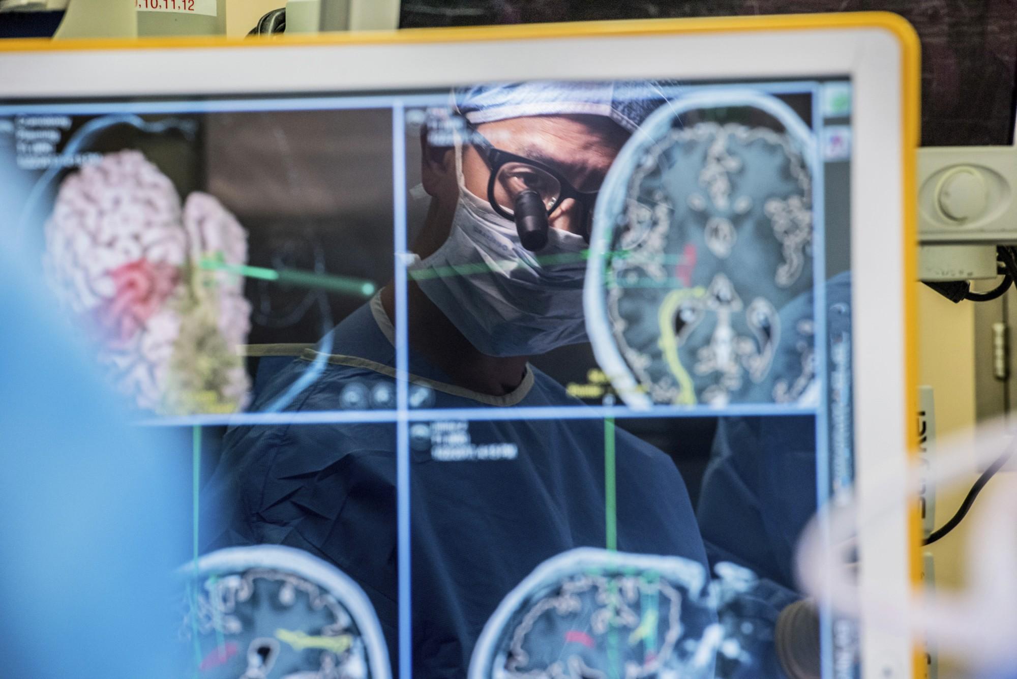 El Dr. Edward Chang, responsable d'aquest avenç, durant una cirurgia cerebral | University of California - San Francisco